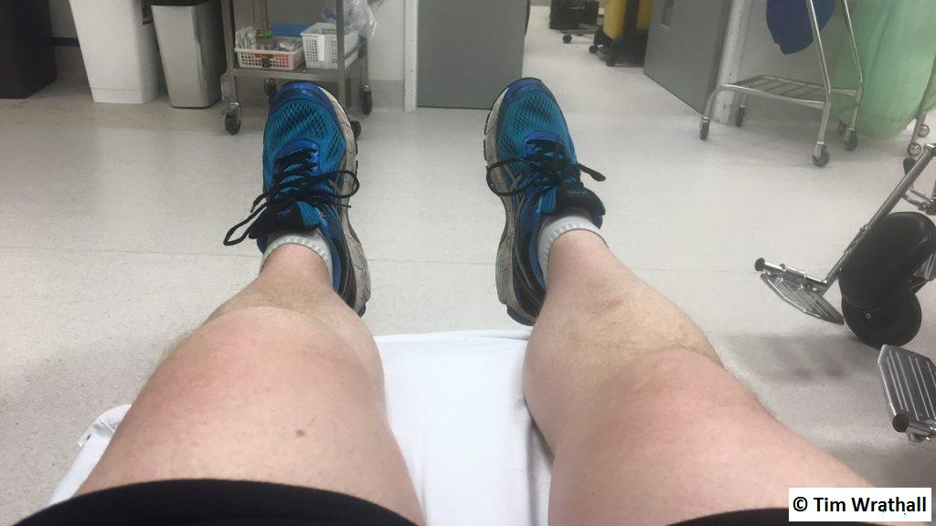 Knee - five hours after